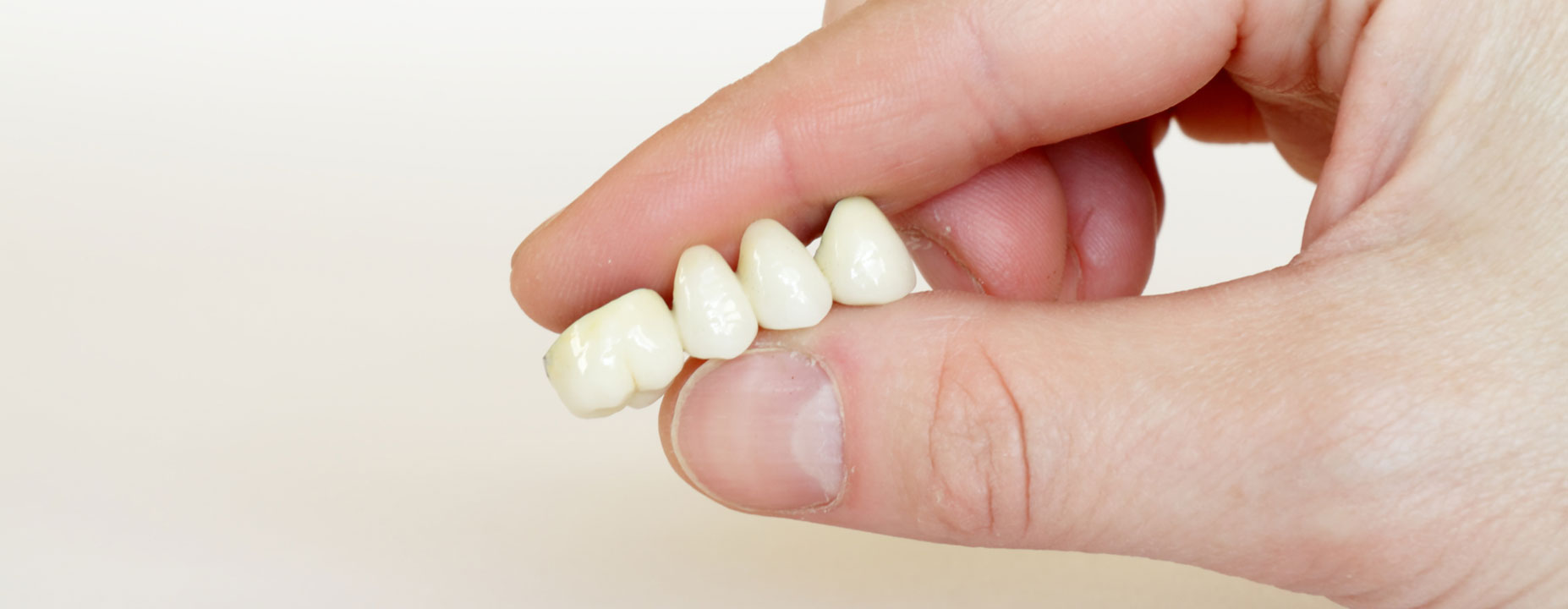 Holding dental crowns by fingers