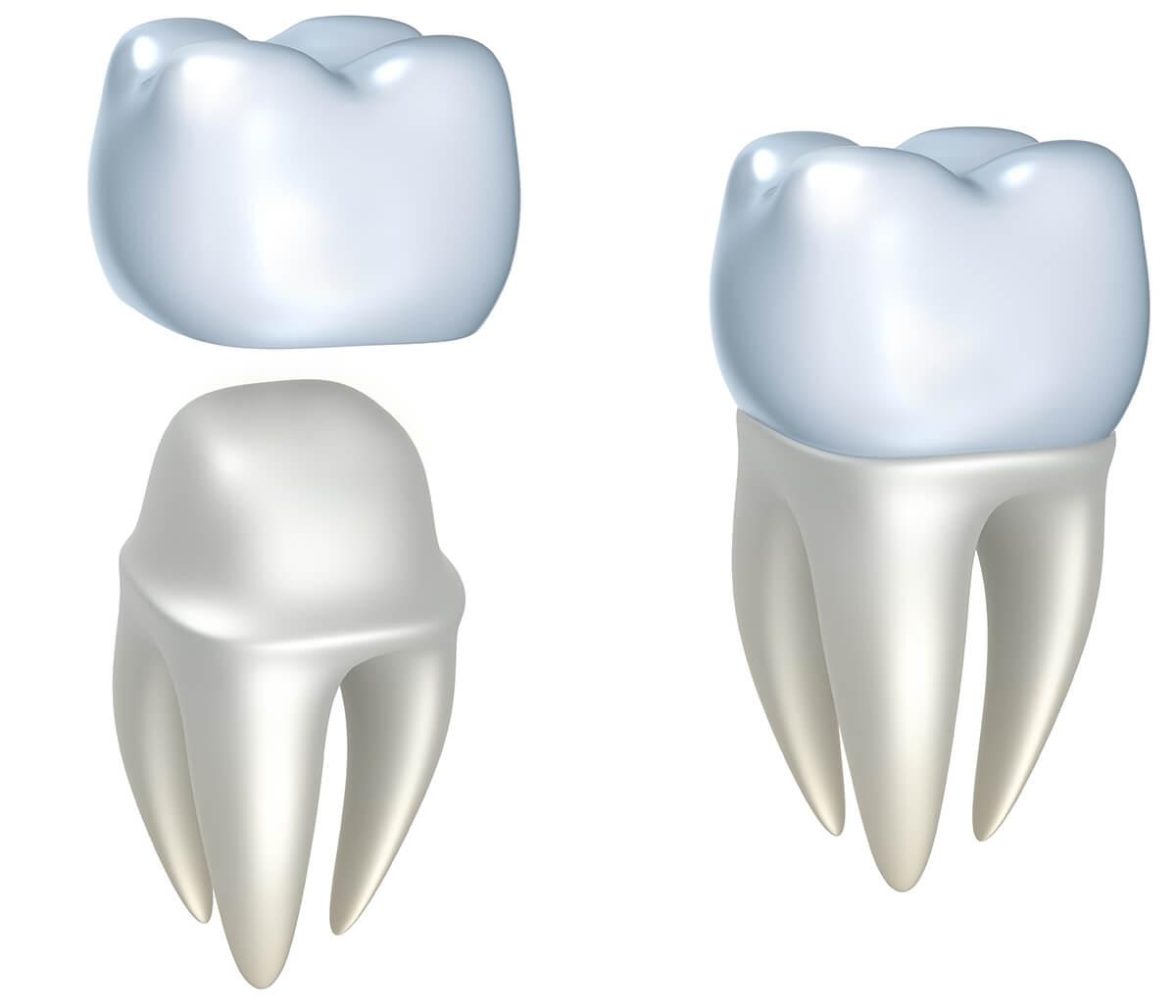 Cerec Crown Dentist at El Paso Modern Dentistry in El Paso TX Area